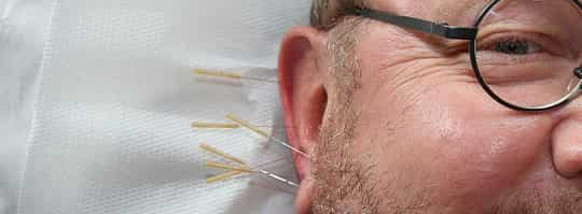 Akupunktur kort forklart